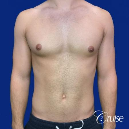 Mild Gynecomastia Puffy Nipple Areola Incision - Before Image