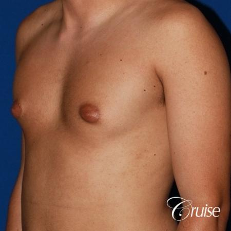 mild gynecomastia before and after with puffy nipple - Before and After Image 3
