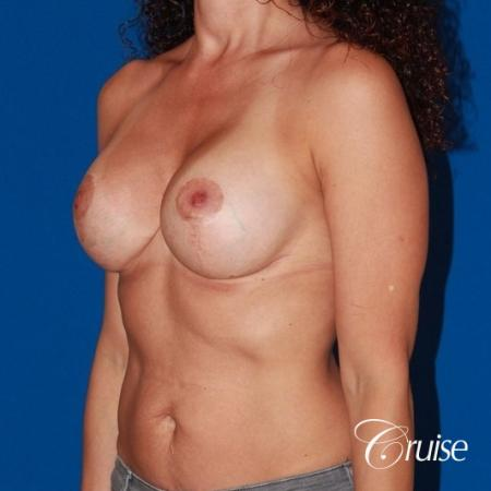 best breast lift revision with high profile silicone 425cc -  After Image 3
