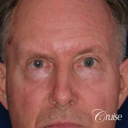 best chemical peel eyelid surgery - After Image