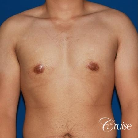 puffy nipple male breast on young adult -  After Image 1