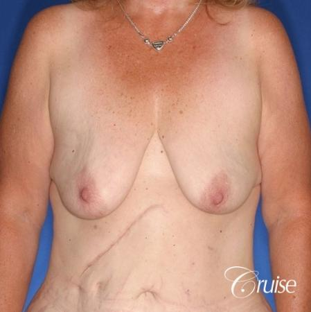 best anchor breast lift with specialist and plastic surgeon - Before Image 1
