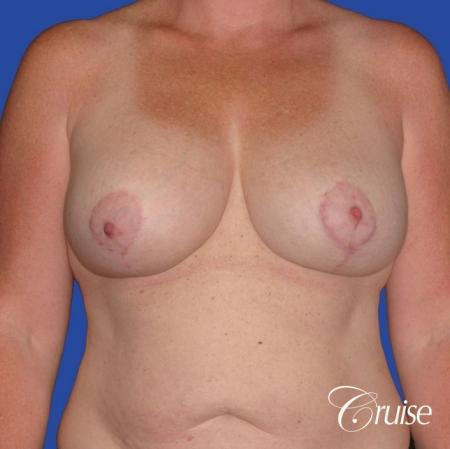 capsular contracture before and after pictures in Newport Beach -  After Image 1