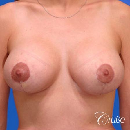 best round saline breast reduction lift surgery -  After Image 1