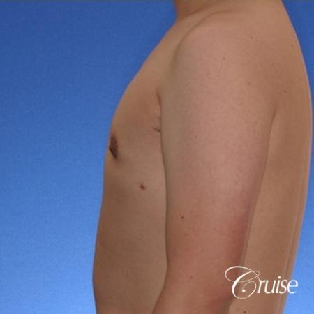 young male with mild gynecomastia surgery for puffy nipple -  After 2