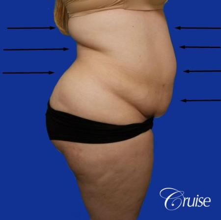 Best liposuction procedures dr cruise - Before and After Image 4