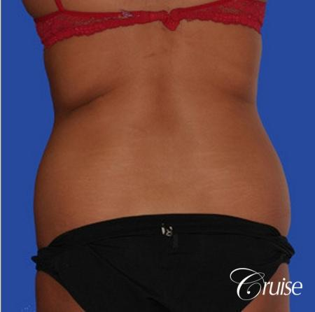 fast way to get with of love handles with liposuction flanks - Before Image 1