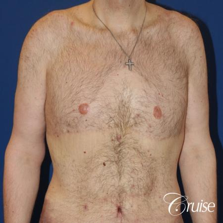 severe weight loss gynecomastia upper body lift - 1 After Image 1