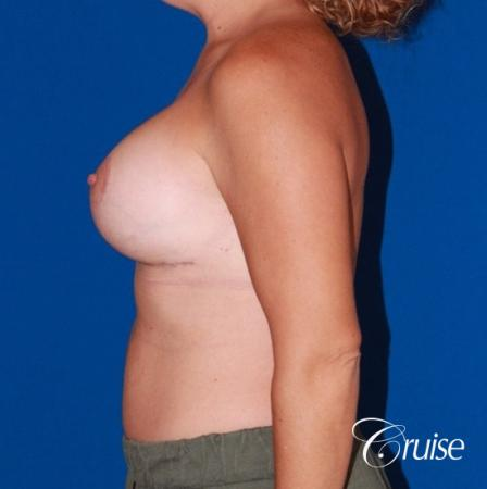 best results for breast lift anchor with saline implants -  After Image 2