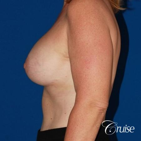 best anchor breast lift with specialist and plastic surgeon -  After Image 2