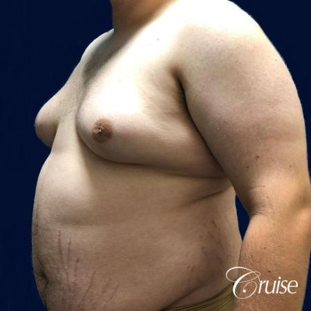 male breast reduction surgery orange county - Before and After 3