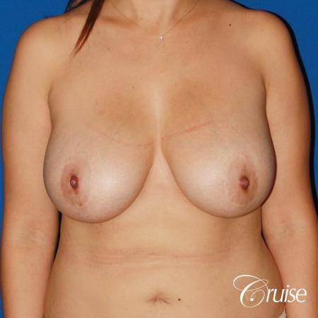 revision breast lift anchor with saline implants - Before Image 1