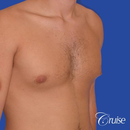 24 yr old body builder mild gynecomastia - Before and After Image 3