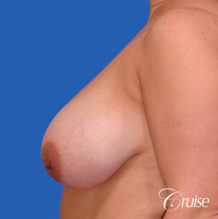 Best breast reduction with silicone augmentation - Before Image 2