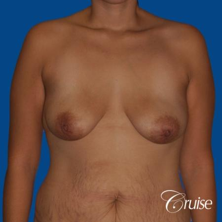 best breast lift anchor with saline augmentation - Before Image 1