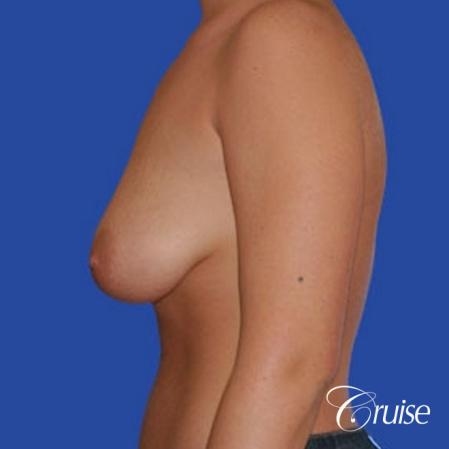 best photos of 20 yr old with saline breast reduction surgery - Before Image 2