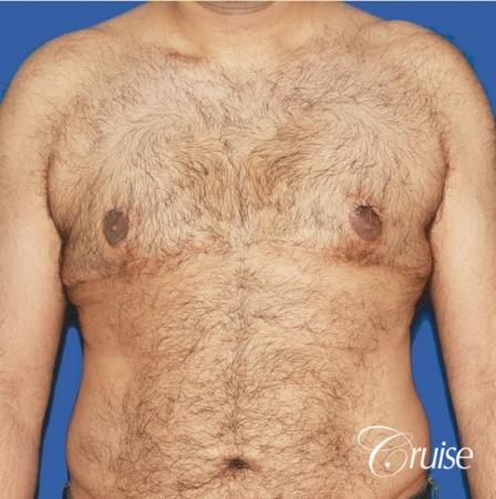 40 year old with severe gynecomastia results - After Image 1