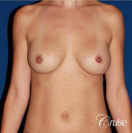 best breast revision for closer cleavage - Before Image 1