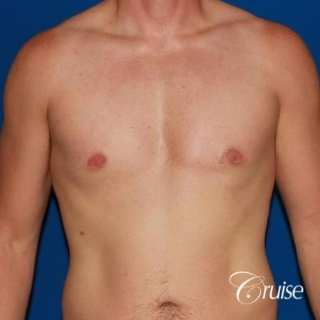 puffy nipple on low body fat -  After Image 1