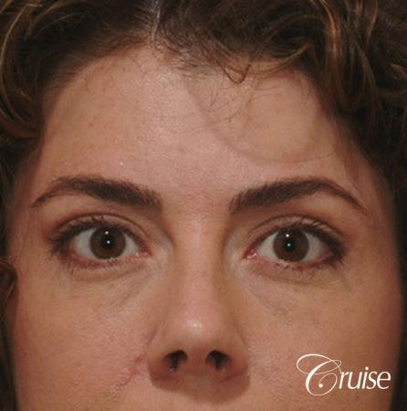 Blepharoplasty - Upper and Lower - After Image