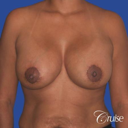 best breast lift donut with saline augmentation -  After 1