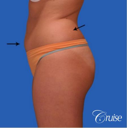 best liposuction results on abdomen, flanks, thighs - Before and After Image 3