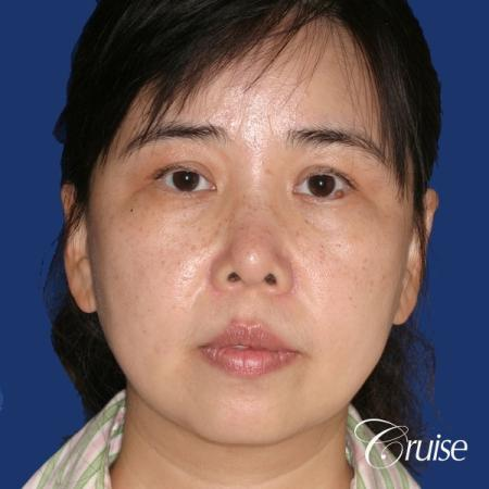 best chin implant photos with large implant - Before Image 1