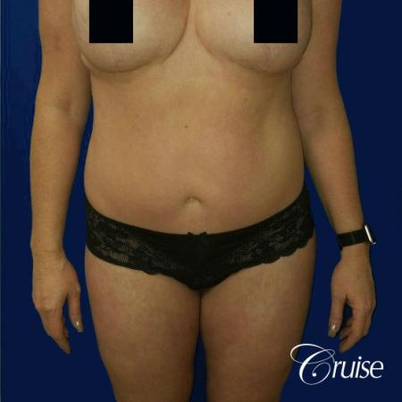 Best tummy tucks dr cruise - After Image 1