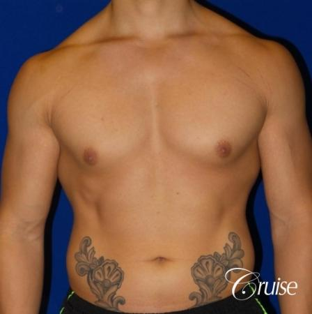 Body Builder Gynecomastia -Areola Incision - Before Image 1