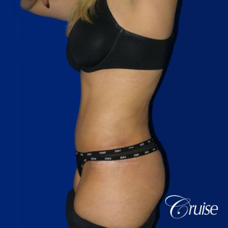 Tummy Tuck Standard Incision - After Image 2