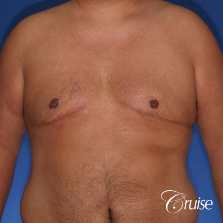 free nipple graft gynecomastia results -  After Image 1