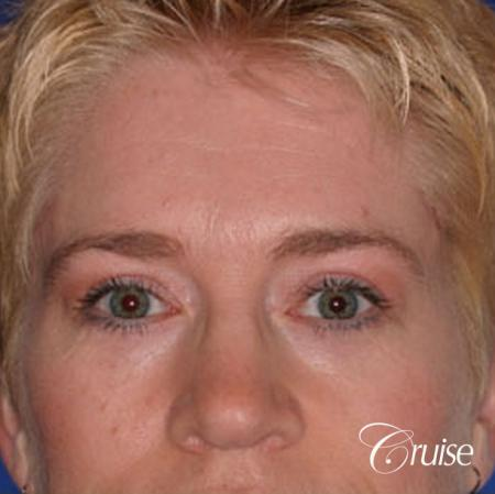 best specialist for upper eyelid surgery - After Image