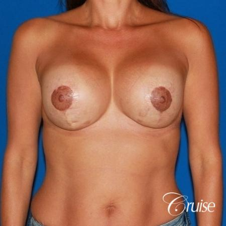 best breast lift on 41 yr old with HP silicone -  After Image 1