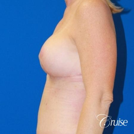 best breast lift revision with saline 270cc -  After Image 2
