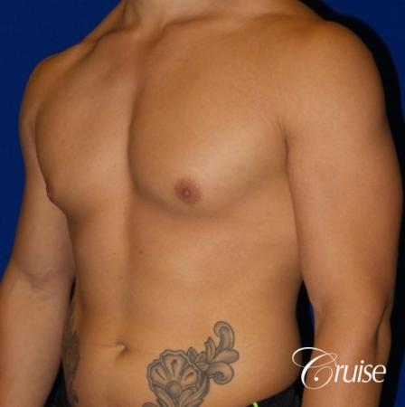 Body Builder Gynecomastia -Areola Incision - Before and After Image 2