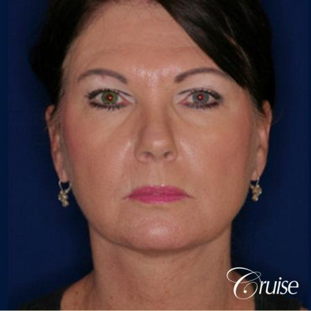 Neck Lift - After Image