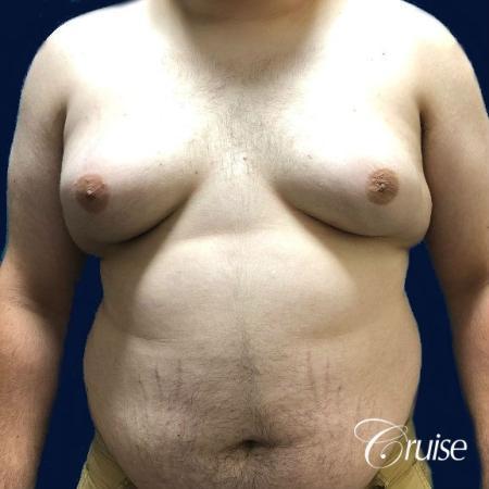 Moderate Gynecomastia Pedicle - Before Image 1