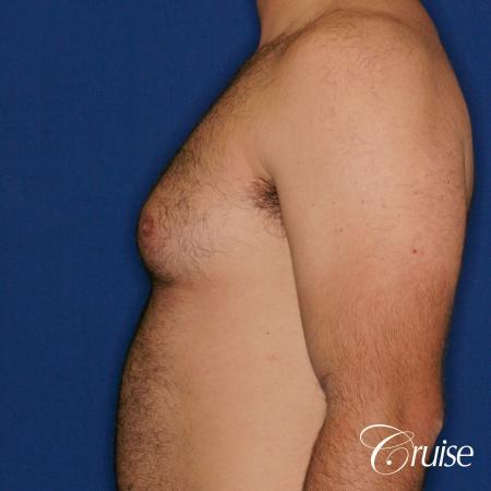 male patient has mild gynecomastia - Before and After Image 2