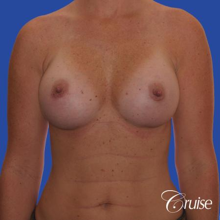 Breast Augmentation - After Image 1