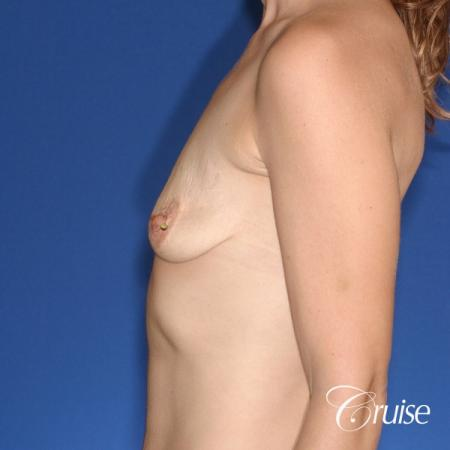 best results for breast lift lollipop with silicone implants - Before 2