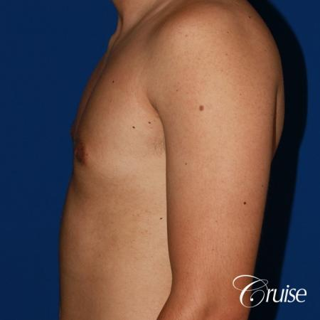 mild gynecomastia before and after with puffy nipple -  After Image 2