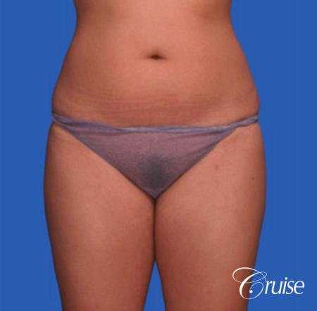 best before and after liposuction stomach and love handles - Before Image