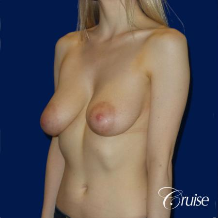Breast Lift before and after Orange County - Before Image 3