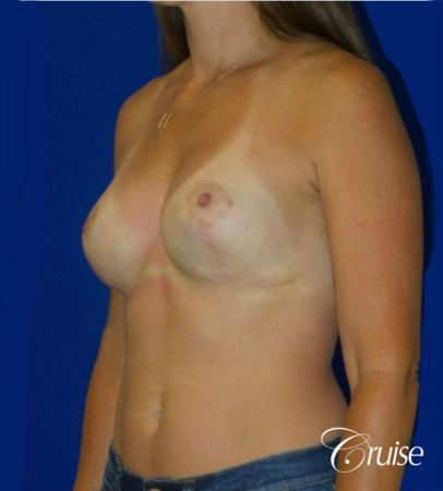 Breast Revision: Patient 2 - After 2