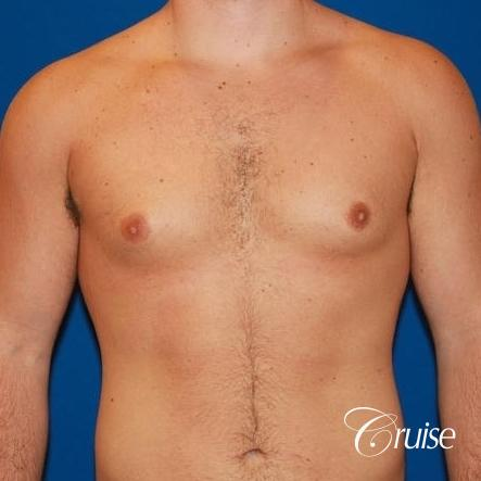 athletic adult with puffy nipple - Before Image 1