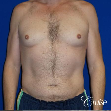 Best Gynecomastia surgeons Los Angeles - Before Image
