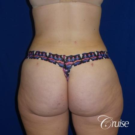 Liposuction Flanks & Abdomen - After Image 2