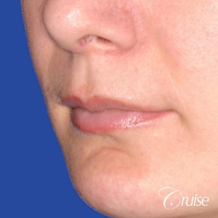 best before and after of lip filler - Before and After Image 2
