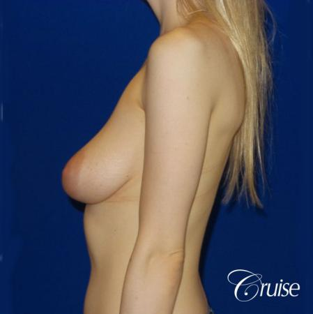Breast Lift before and after Orange County - Before Image 4