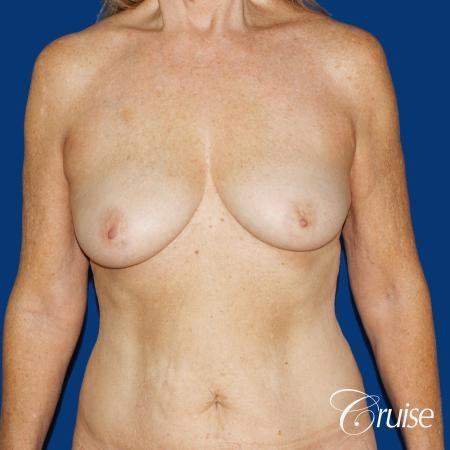 62 yr old woman with breast lift anchor and silicone implants - Before 1